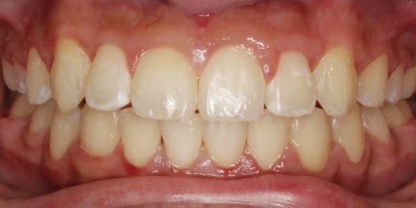 cary orthodontics